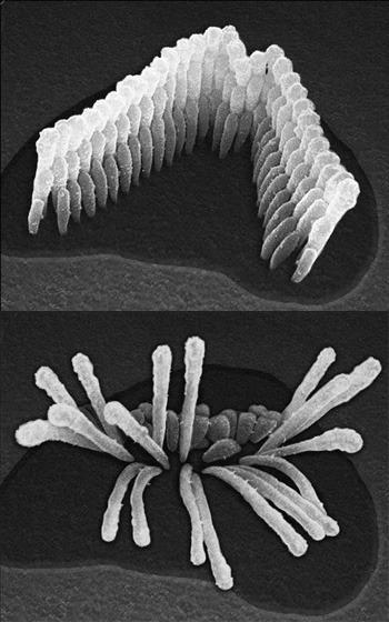 ear_cell_comparison1